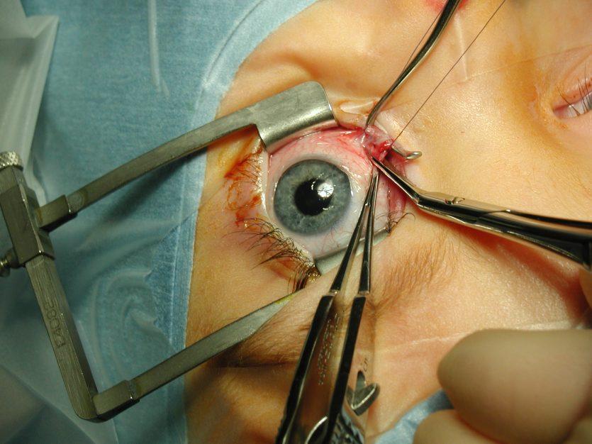 Retina artificial elaborada con tintas orgánicas para personas invidentes