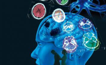 Avances de la tecnología en la Esclerosis
