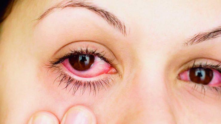 La orina es la razón por la que tus ojos se ponen rojos en las piscinas