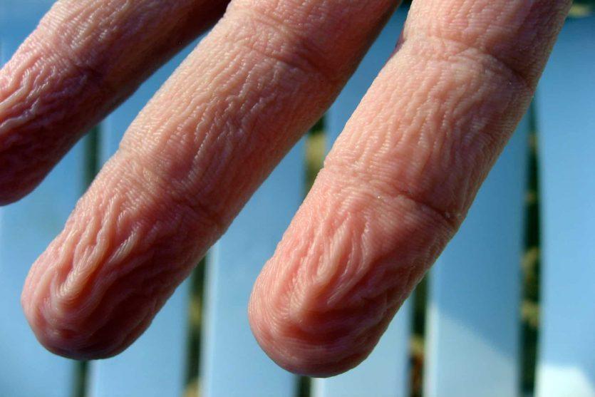 Las arrugas en los dedos