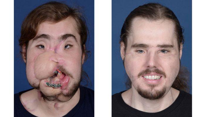Un trasplante de rostro