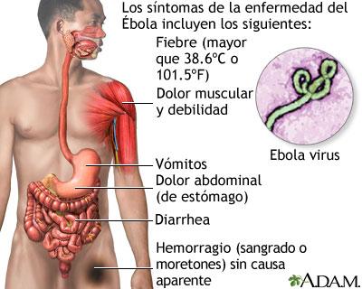 ebola 2019