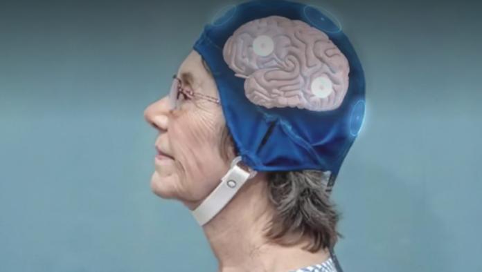 Casco que elimina Alzheimer